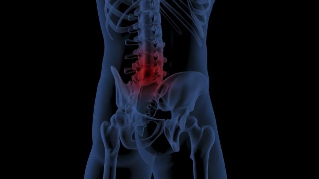 長く続く痛みに悩んでいる方には、整形外科的な症状や状態を伴っているように感じます